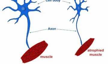 Amyotrophic Lateral Sclerosis: Lou Gherig's Disease
